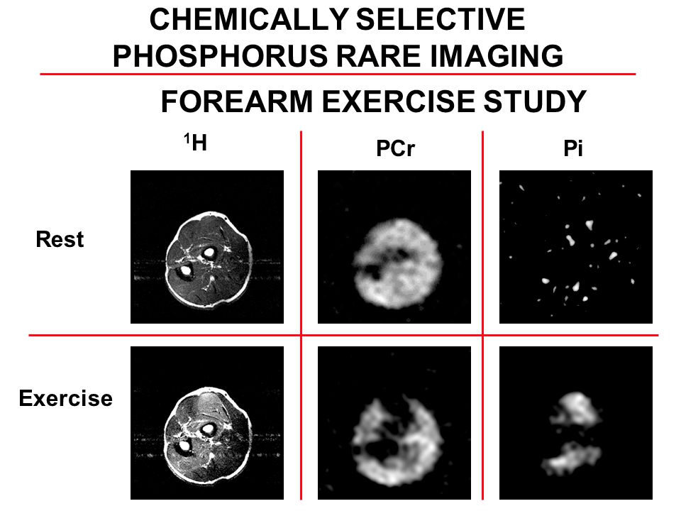 Rest Exercise 1H1H PCrPi FOREARM EXERCISE STUDY CHEMICALLY SELECTIVE PHOSPHORUS RARE IMAGING