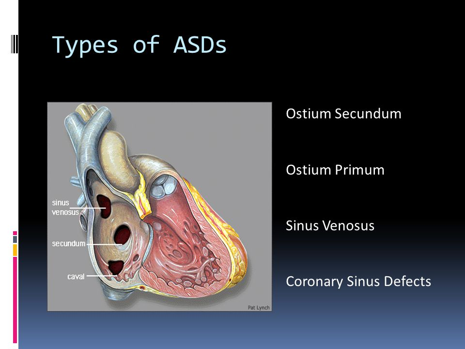 Sinus Venosus Defect  1% of all congenital heat defects in the United States  Account for 10% of all ASDs  Not truly considered an ASD:  Abnormality in the insertion of the superior or inferior vena cava (which overrides the interatrial septum)  Two types:  Superior sinus venosus defects, located in the atrial septum immediately below the SVC  Inferior sinus venosus defects (less common), located in the atrial septum immediately above the IVC