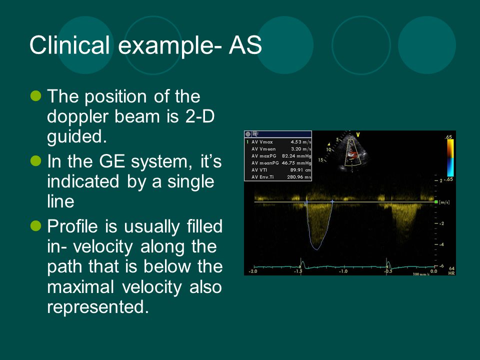 Clinical example- AS The position of the doppler beam is 2-D guided. In the GE system, it's indicated by a single line Profile is usually filled in- v