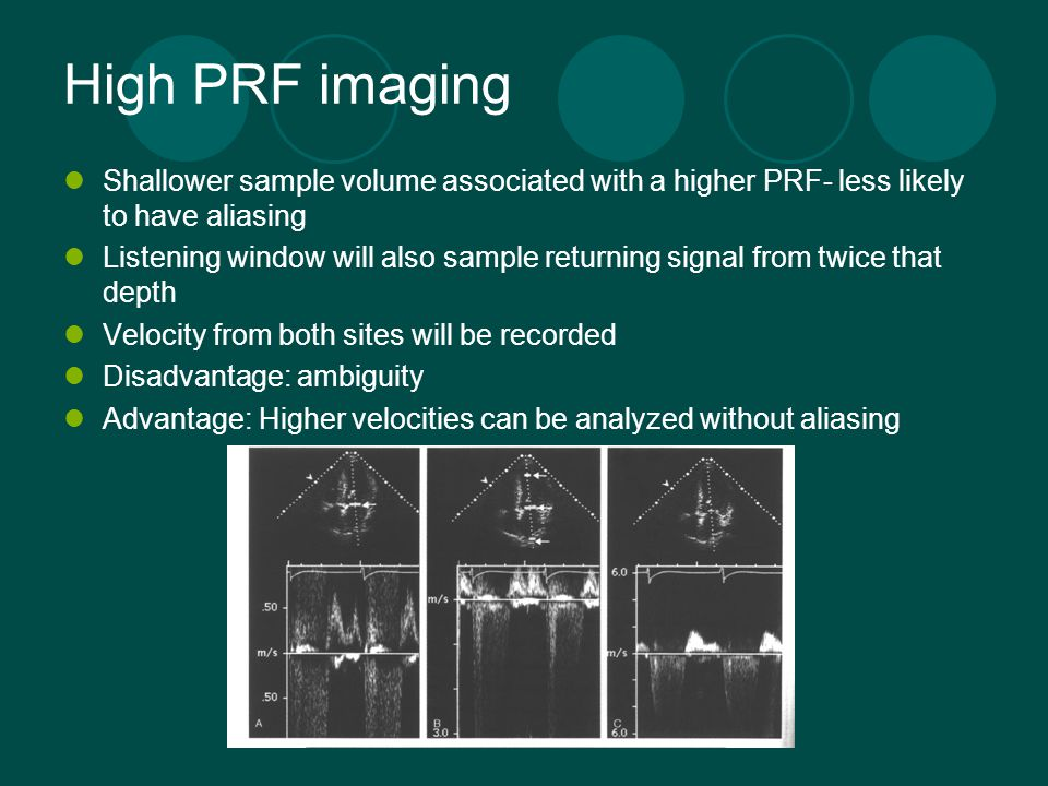 High PRF imaging Shallower sample volume associated with a higher PRF- less likely to have aliasing Listening window will also sample returning signal