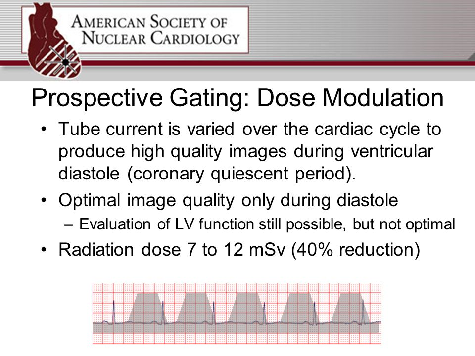Prospective Gating: Dose Modulation Tube current is varied over the cardiac cycle to produce high quality images during ventricular diastole (coronary quiescent period).