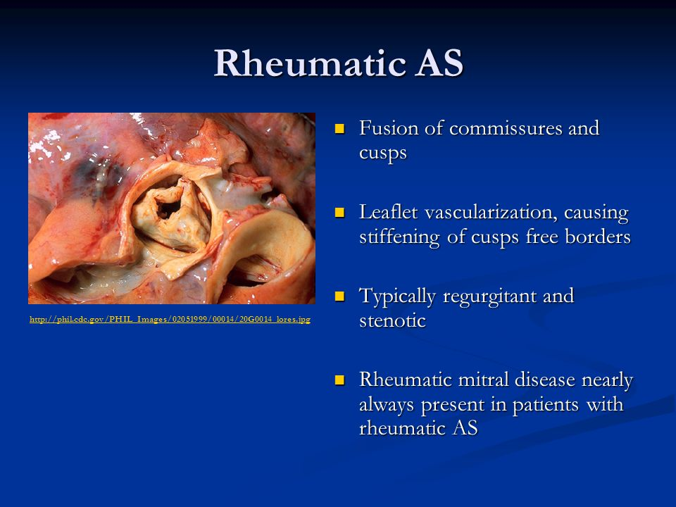 Rheumatic AS Fusion of commissures and cusps Fusion of commissures and cusps Leaflet vascularization, causing stiffening of cusps free borders Leaflet