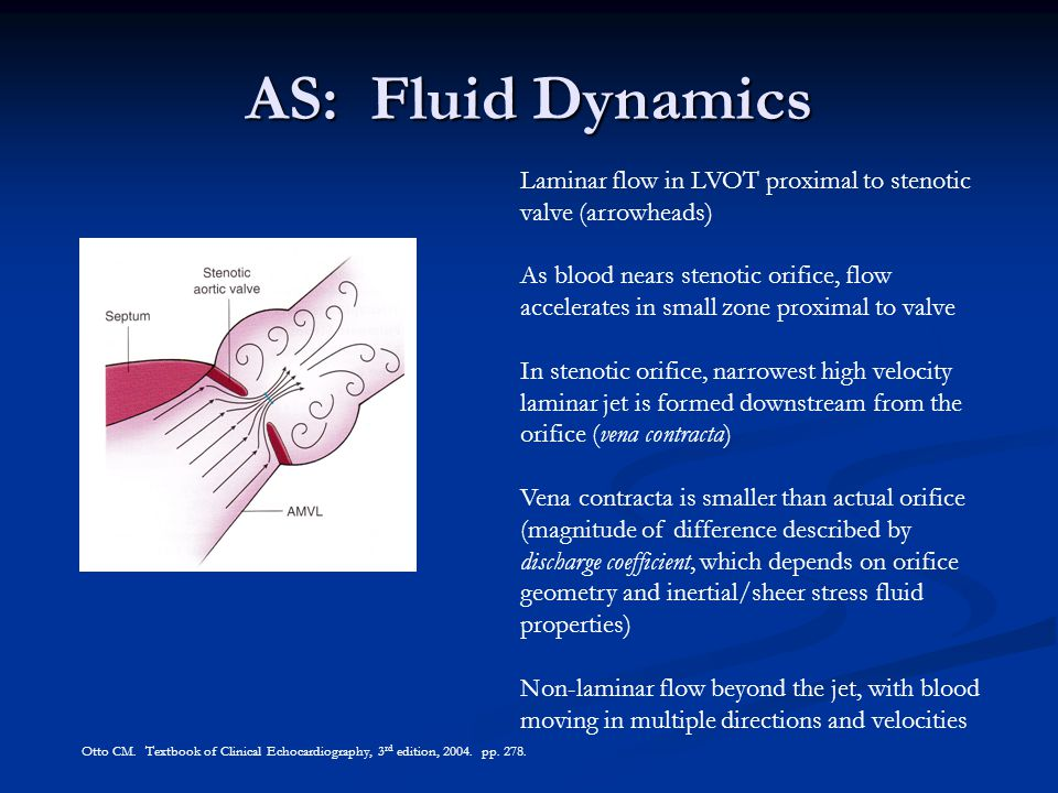 AS: Fluid Dynamics Laminar flow in LVOT proximal to stenotic valve (arrowheads) As blood nears stenotic orifice, flow accelerates in small zone proxim