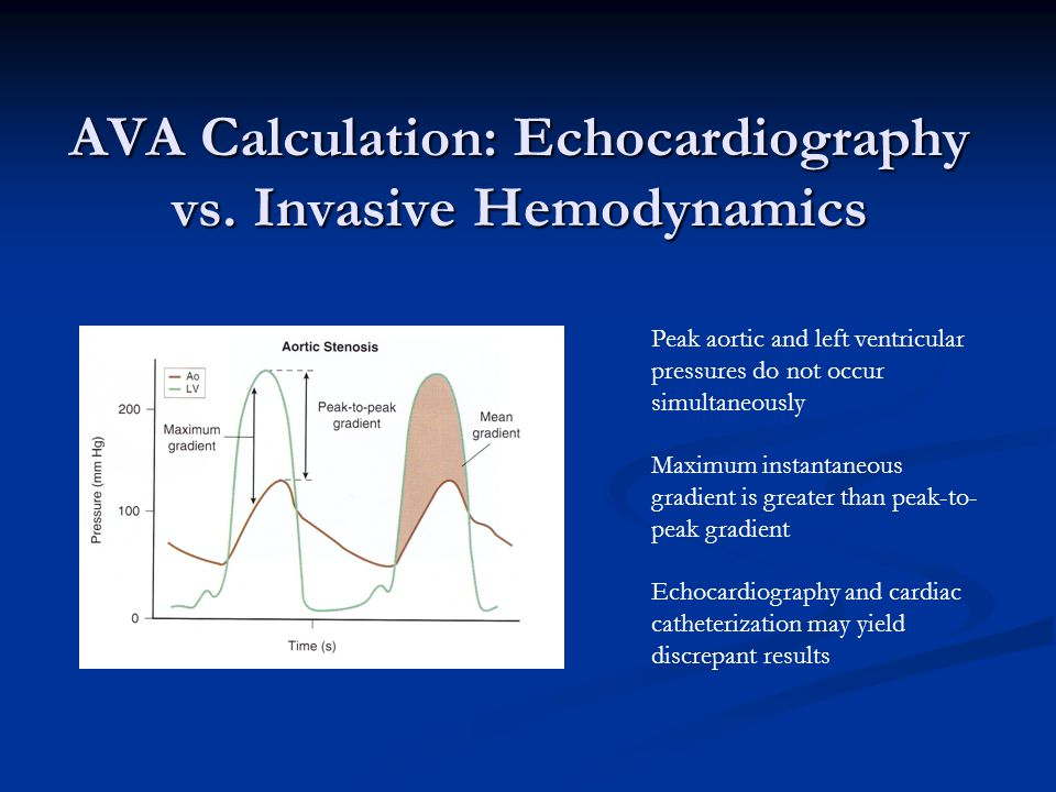 AVA Calculation: Echocardiography vs. Invasive Hemodynamics Peak aortic and left ventricular pressures do not occur simultaneously Maximum instantaneo