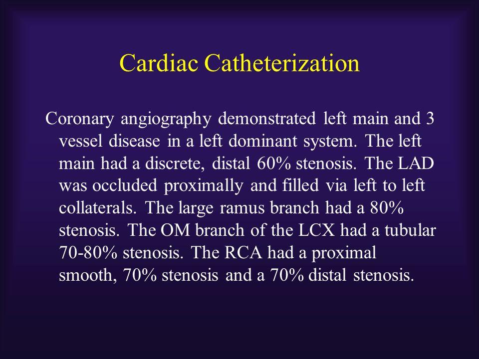 Ischemic CM with Viable Myocardium