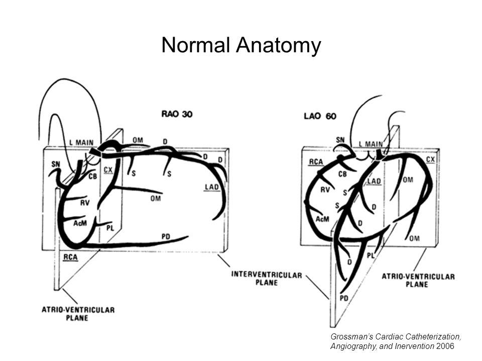 Normal Anatomy Grossman's Cardiac Catheterization, Angiography, and Inervention 2006