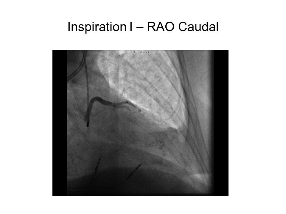 Inspiration I – RAO Caudal