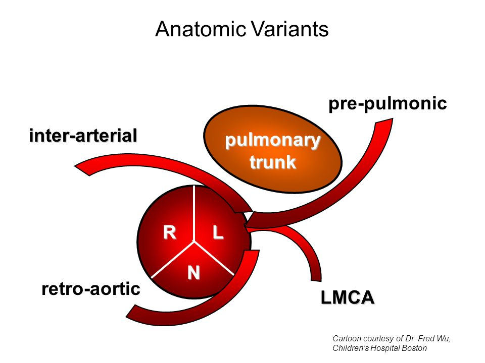 pulmonarytrunk RL N LMCA inter-arterial Anatomic Variants pre-pulmonic retro-aortic Cartoon courtesy of Dr.
