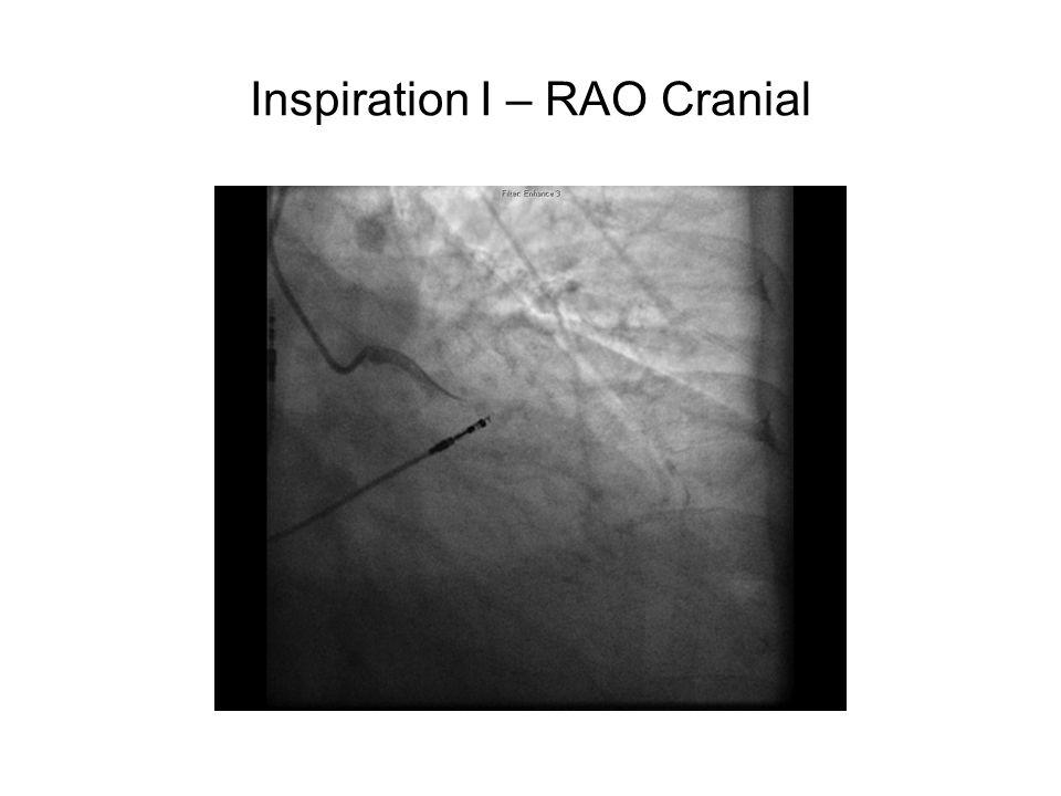 Inspiration I – RAO Cranial