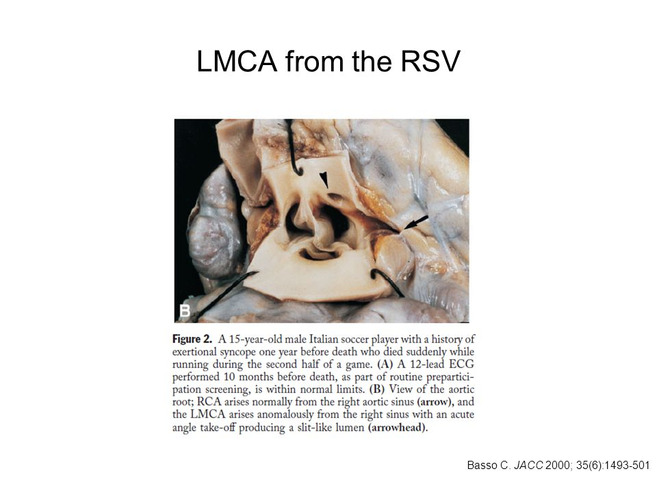 LMCA from the RSV Basso C. JACC 2000; 35(6):1493-501