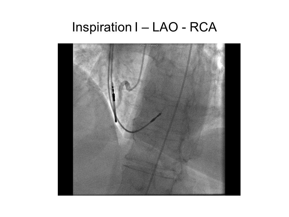 Inspiration I – LAO - RCA