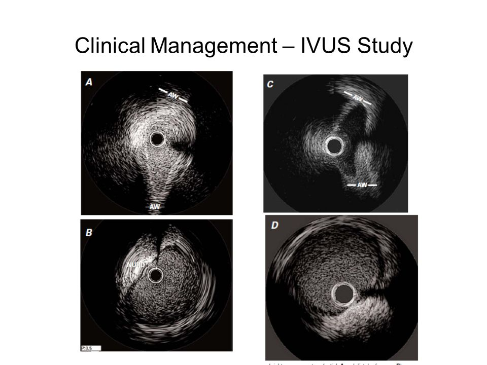 Clinical Management – IVUS Study