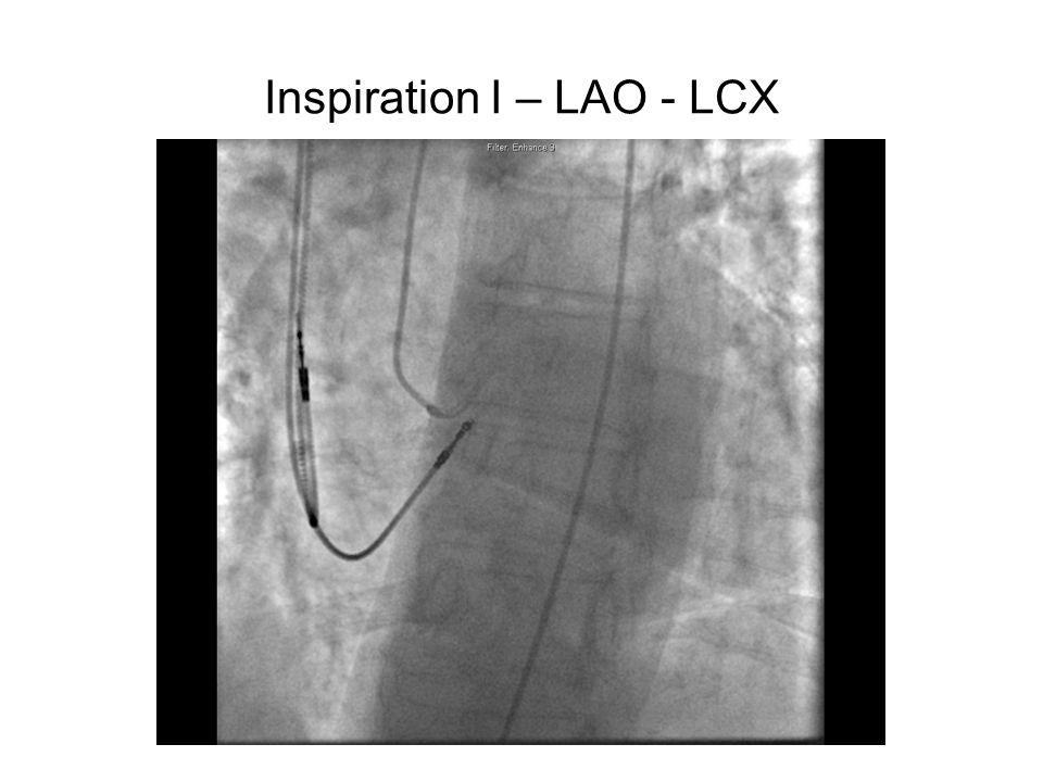 Inspiration I – LAO - LCX