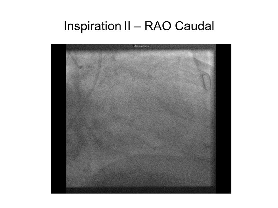 Inspiration II – RAO Caudal