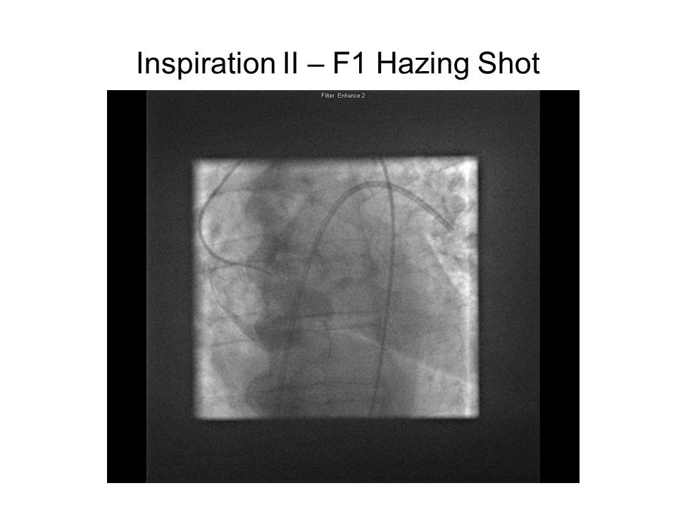 Inspiration II – F1 Hazing Shot