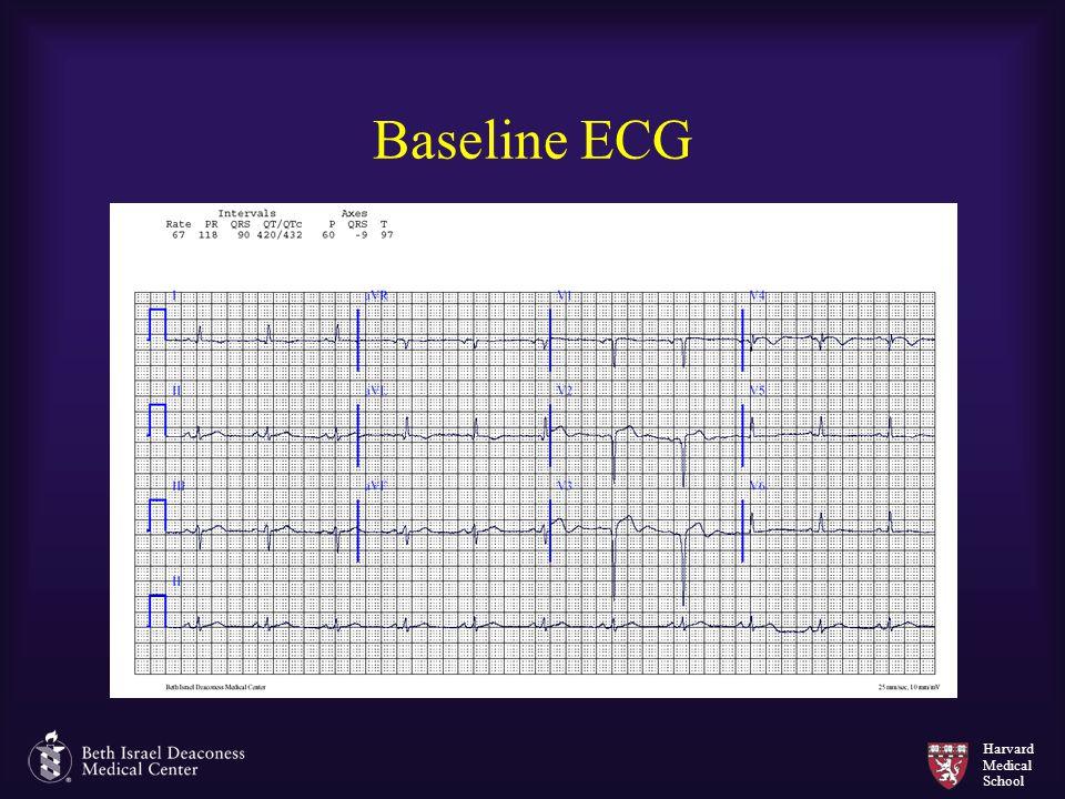 Harvard Medical School Baseline ECG