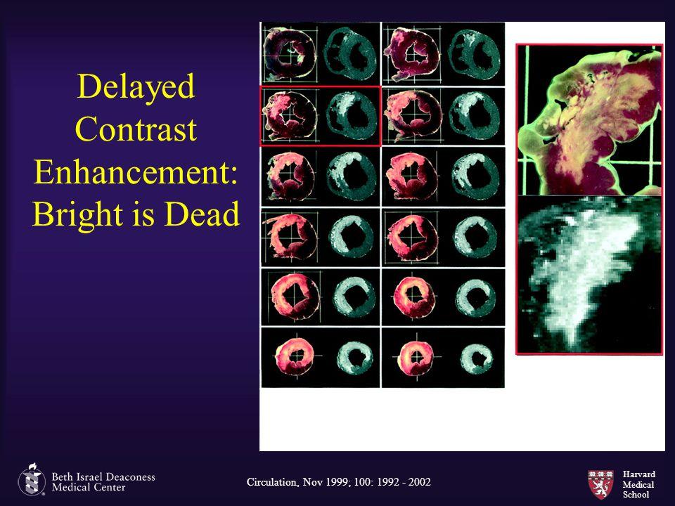 Harvard Medical School Delayed Contrast Enhancement: Bright is Dead Circulation, Nov 1999; 100: 1992 - 2002