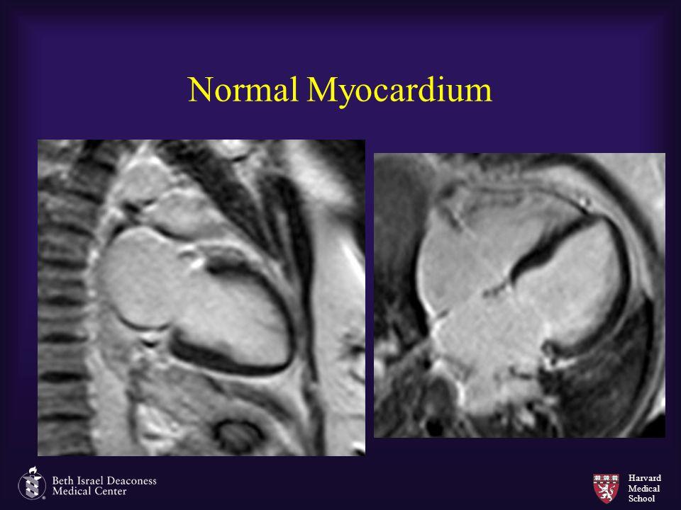 Harvard Medical School Normal Myocardium