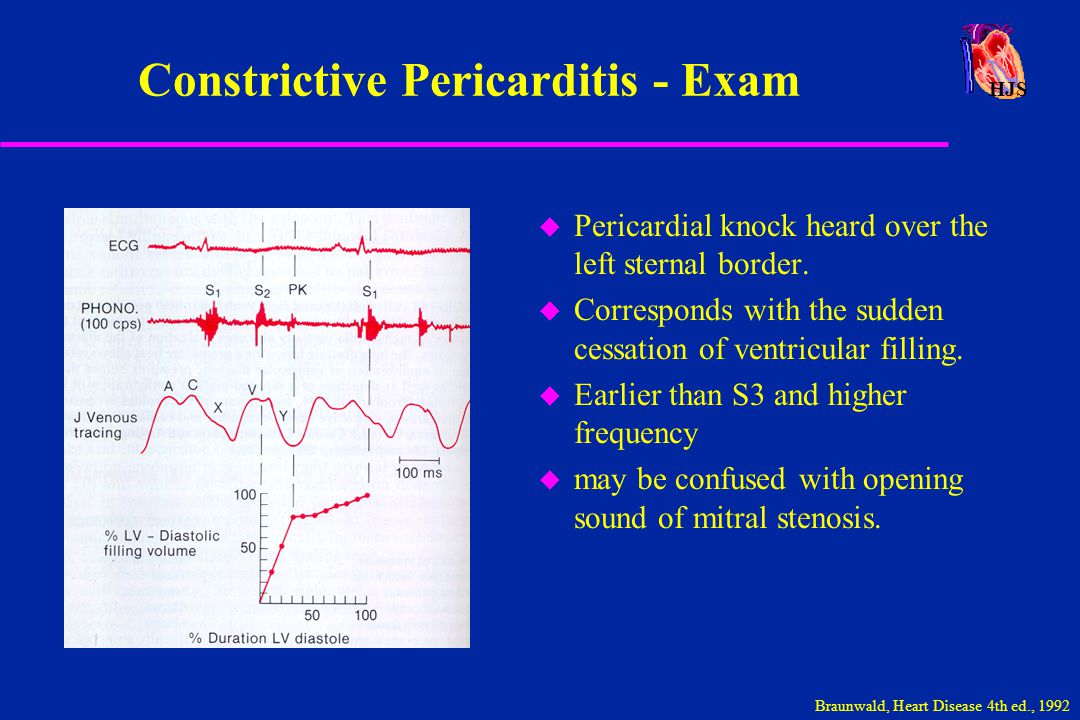 HJS Constrictive Pericarditis - Exam u Pericardial knock heard over the left sternal border. u Corresponds with the sudden cessation of ventricular fi