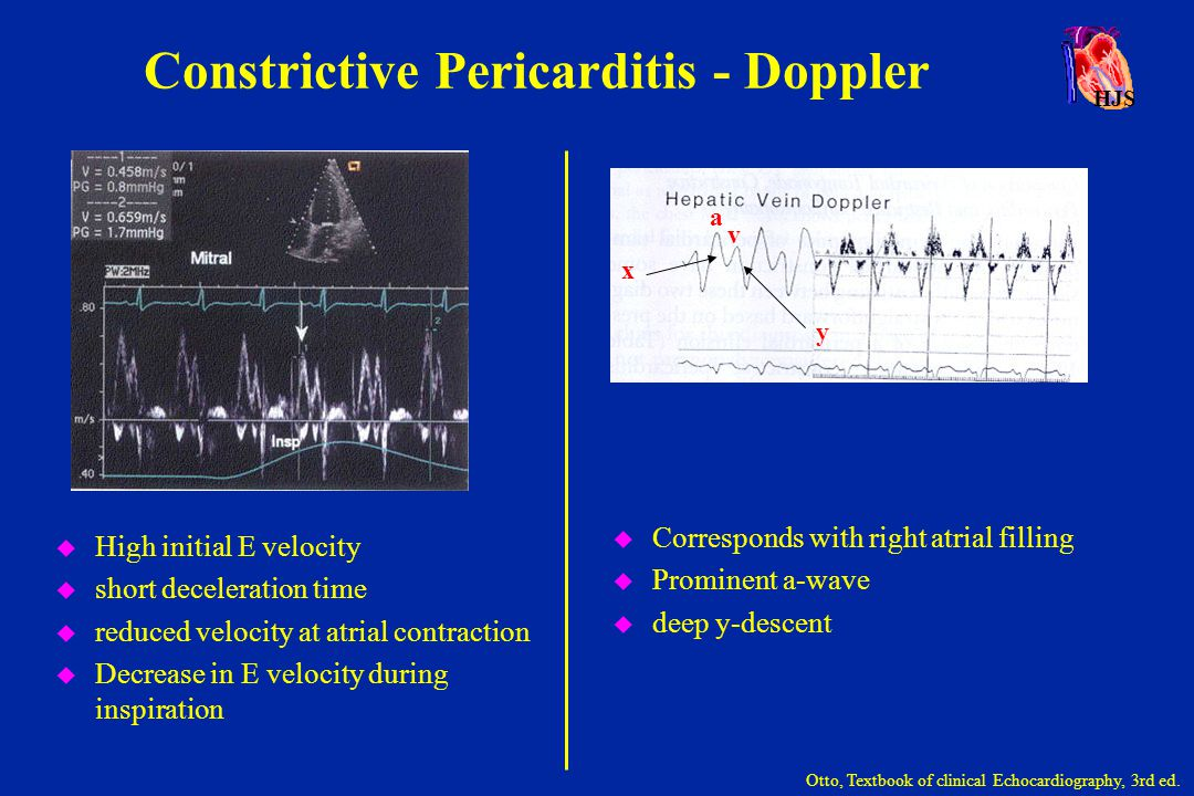 HJS Constrictive Pericarditis - Doppler u Corresponds with right atrial filling u Prominent a-wave u deep y-descent Otto, Textbook of clinical Echocar