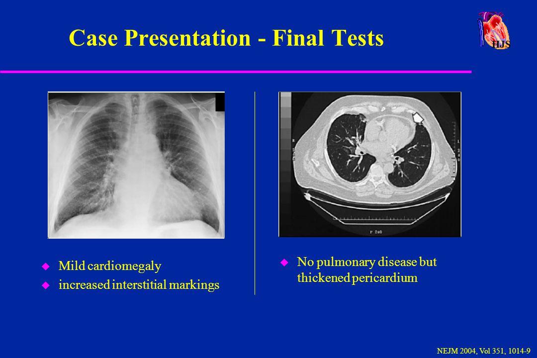 HJS Constrictive Pericarditis - Exam u Pericardial knock heard over the left sternal border.