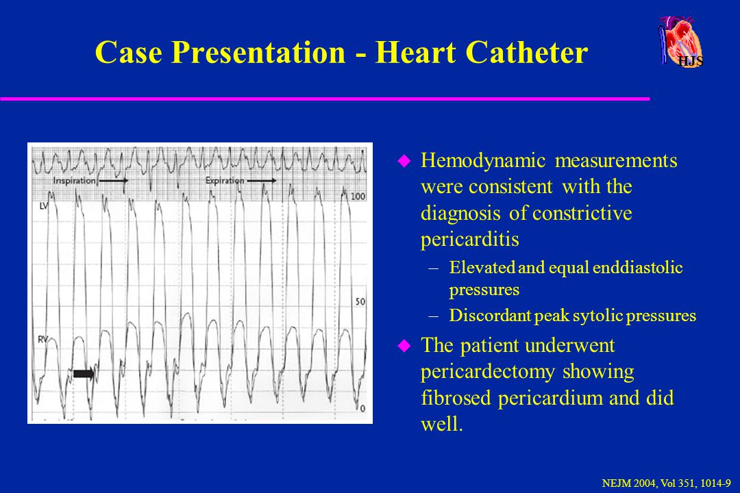 HJS Constrictive Pericarditis - Catheterization u Left and right ventricular pressures should be recorded simultaneously at the same scale u RV and LV diastolic pressures are elevated and equal within 5 mm or less u dip and plateau configuration of RV and LV wave forms u all filling occurs during early diastole u tachycardia may obscure some of the findings Braunwald, Heart Disease 4th ed., 1992