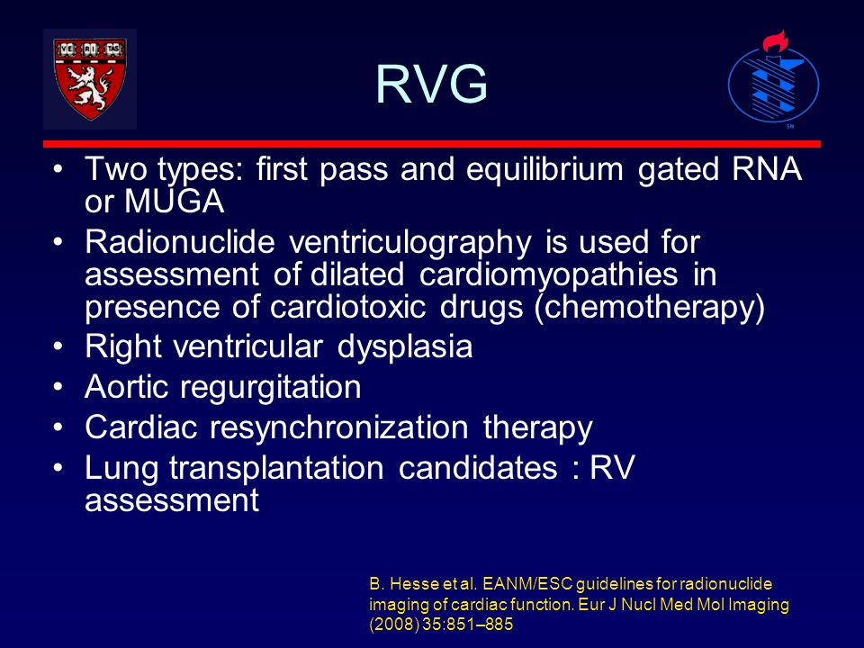RVG Two types: first pass and equilibrium gated RNA or MUGA Radionuclide ventriculography is used for assessment of dilated cardiomyopathies in presen