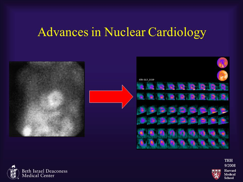 Harvard Medical School THH 9/2008 Advances in Nuclear Cardiology