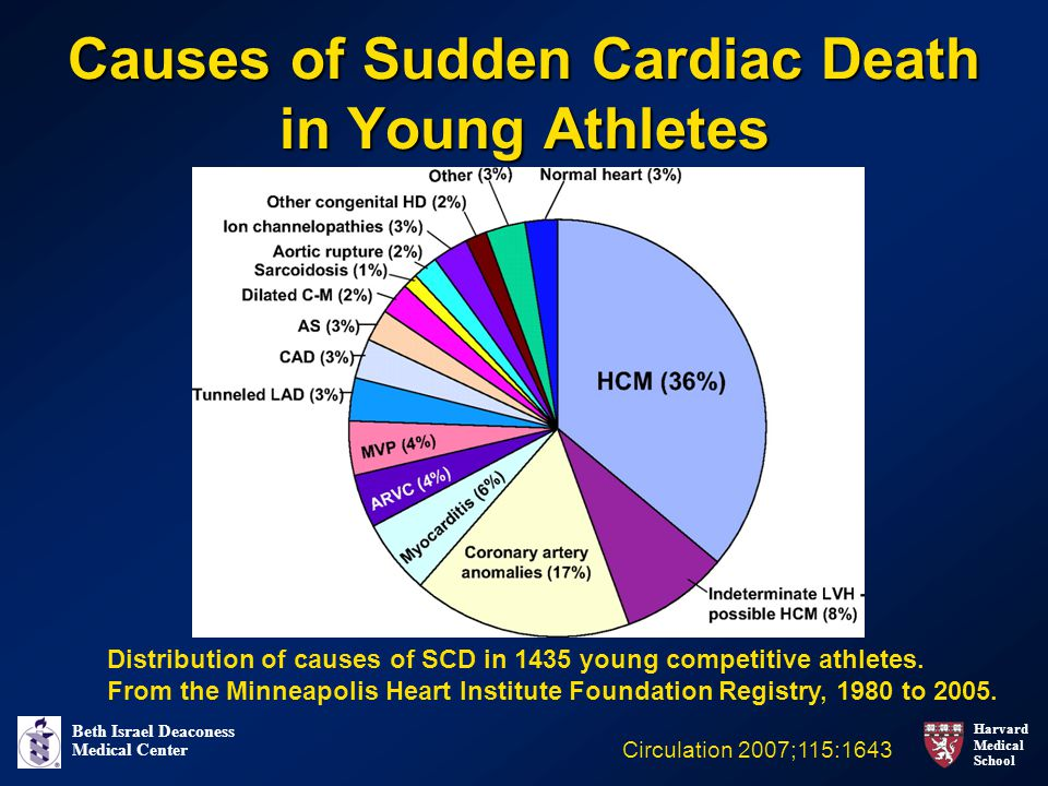 Harvard Medical School Beth Israel Deaconess Medical Center Causes of Sudden Cardiac Death in Young Athletes Circulation 2007;115:1643 Distribution of
