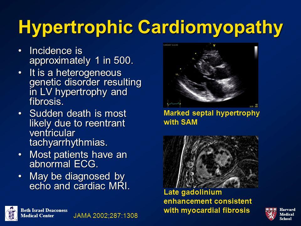 Harvard Medical School Beth Israel Deaconess Medical Center Hypertrophic Cardiomyopathy Incidence is approximately 1 in 500.Incidence is approximately 1 in 500.