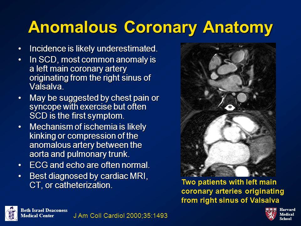 Harvard Medical School Beth Israel Deaconess Medical Center Anomalous Coronary Anatomy Incidence is likely underestimated.Incidence is likely underestimated.