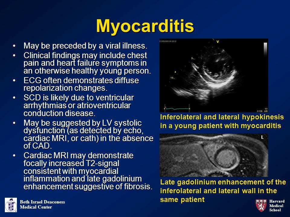 Harvard Medical School Beth Israel Deaconess Medical Center Myocarditis May be preceded by a viral illness.May be preceded by a viral illness.