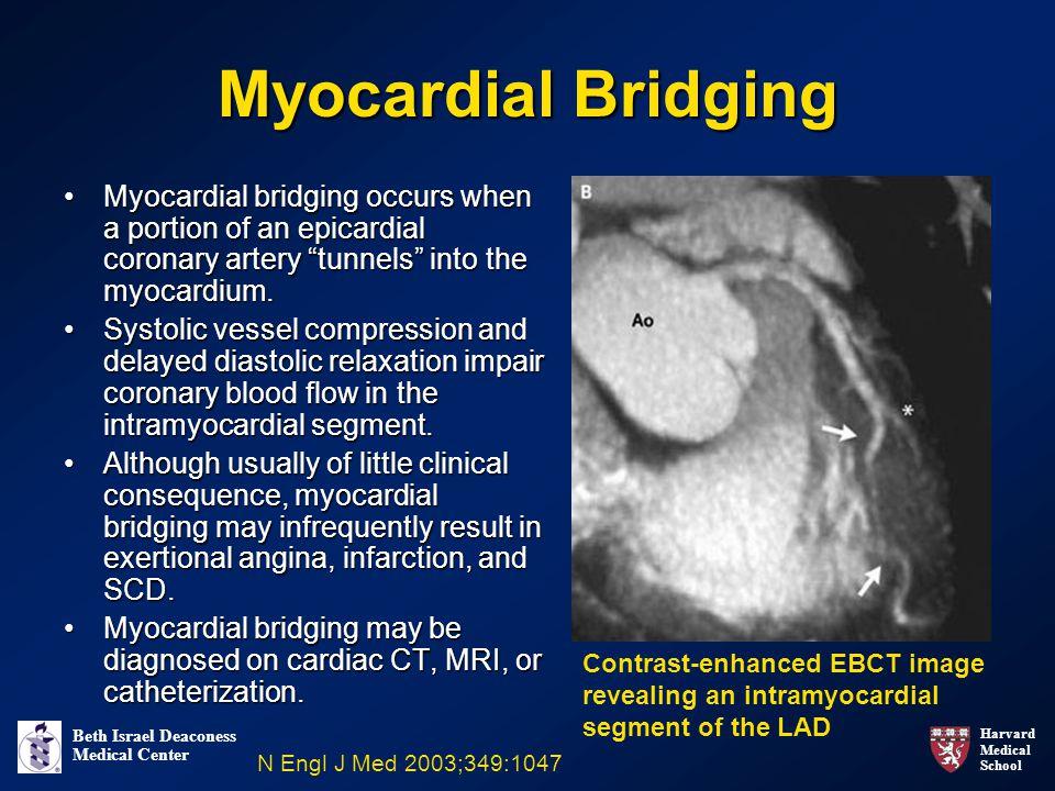 Harvard Medical School Beth Israel Deaconess Medical Center Myocardial Bridging Myocardial bridging occurs when a portion of an epicardial coronary artery tunnels into the myocardium.Myocardial bridging occurs when a portion of an epicardial coronary artery tunnels into the myocardium.