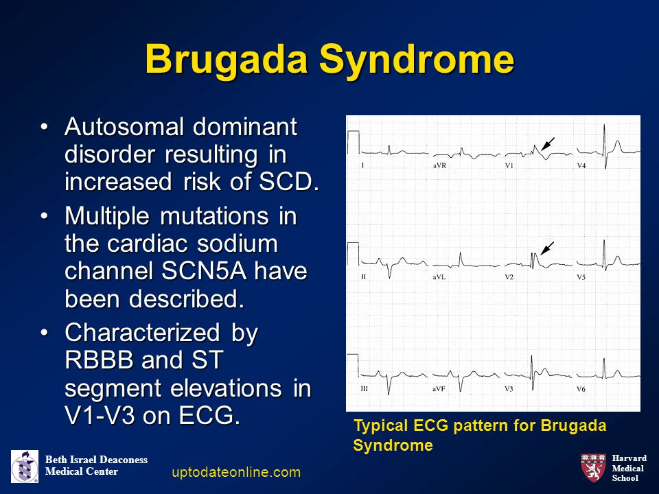 Harvard Medical School Beth Israel Deaconess Medical Center Brugada Syndrome Autosomal dominant disorder resulting in increased risk of SCD.Autosomal dominant disorder resulting in increased risk of SCD.