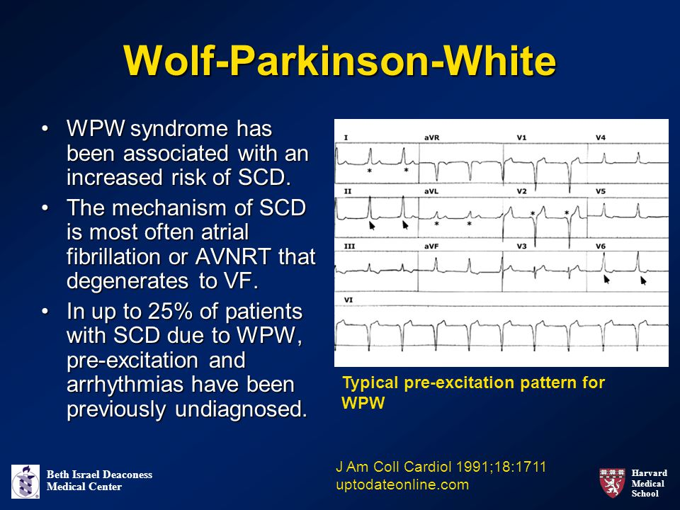 Harvard Medical School Beth Israel Deaconess Medical Center Wolf-Parkinson-White WPW syndrome has been associated with an increased risk of SCD.WPW syndrome has been associated with an increased risk of SCD.