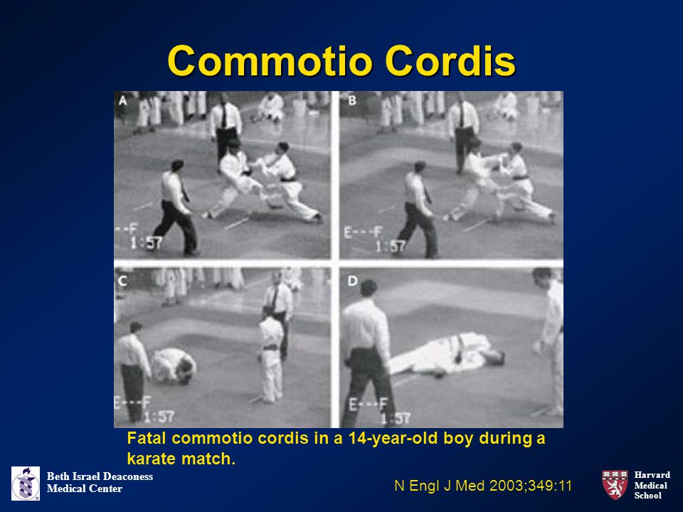 Harvard Medical School Beth Israel Deaconess Medical Center Commotio Cordis N Engl J Med 2003;349:11 Fatal commotio cordis in a 14-year-old boy during a karate match.