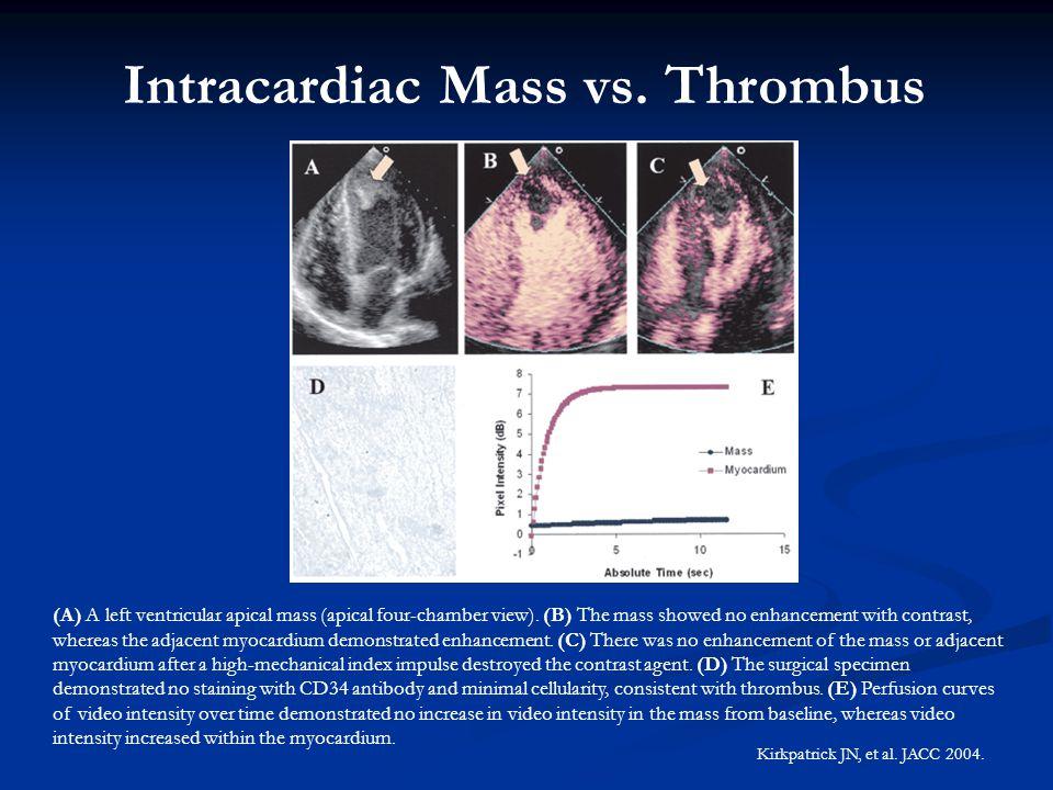 (A) A left ventricular apical mass (apical four-chamber view). (B) The mass showed no enhancement with contrast, whereas the adjacent myocardium demon