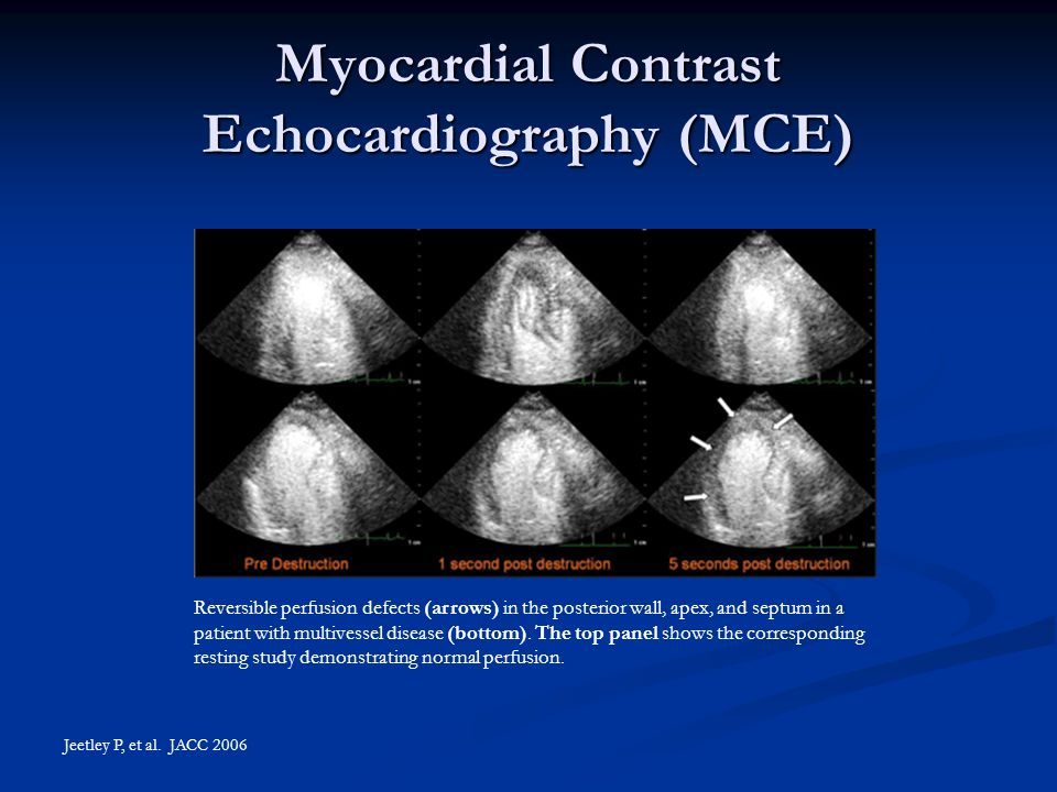 Myocardial Contrast Echocardiography (MCE) Jeetley P, et al. JACC 2006 Reversible perfusion defects (arrows) in the posterior wall, apex, and septum i