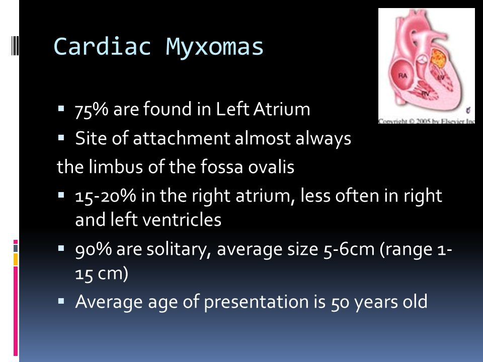 Cardiac Myxomas  75% are found in Left Atrium  Site of attachment almost always the limbus of the fossa ovalis  15-20% in the right atrium, less of