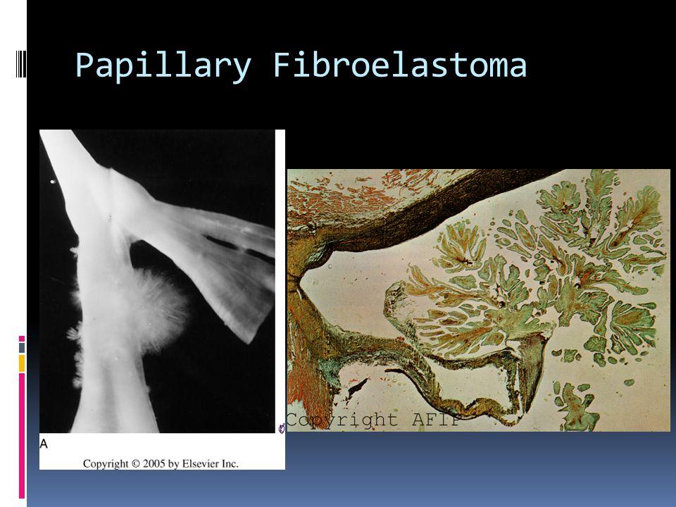 Papillary Fibroelastoma