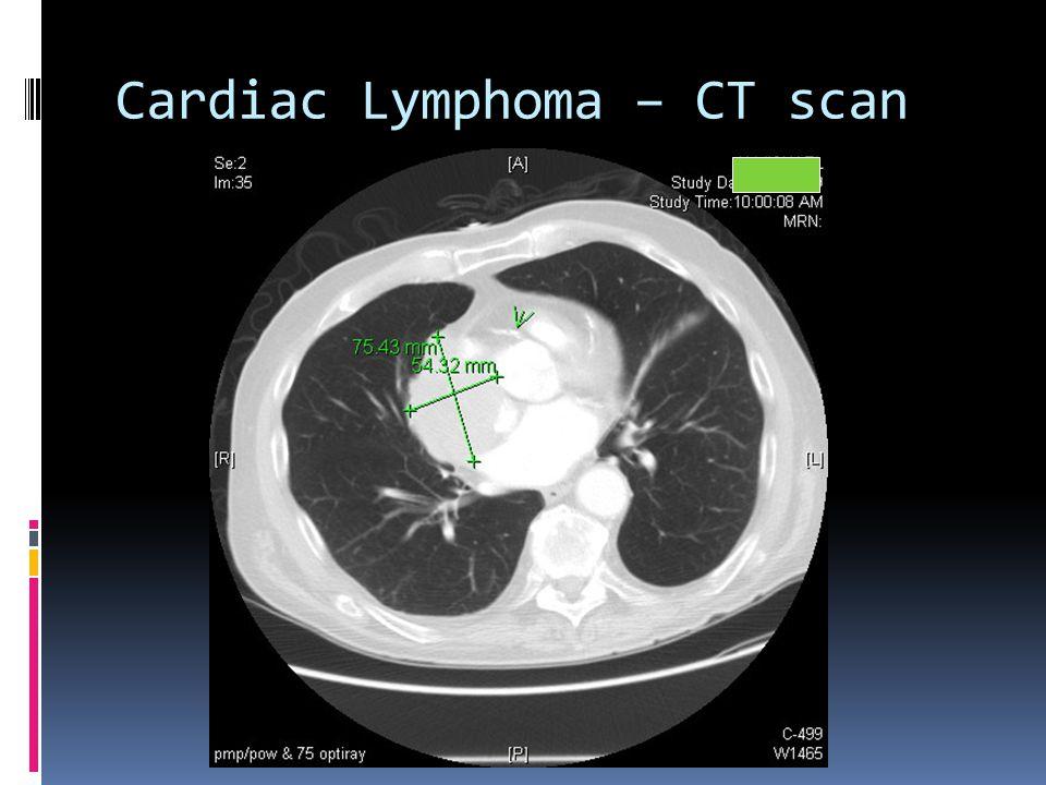 Cardiac Lymphoma – CT scan