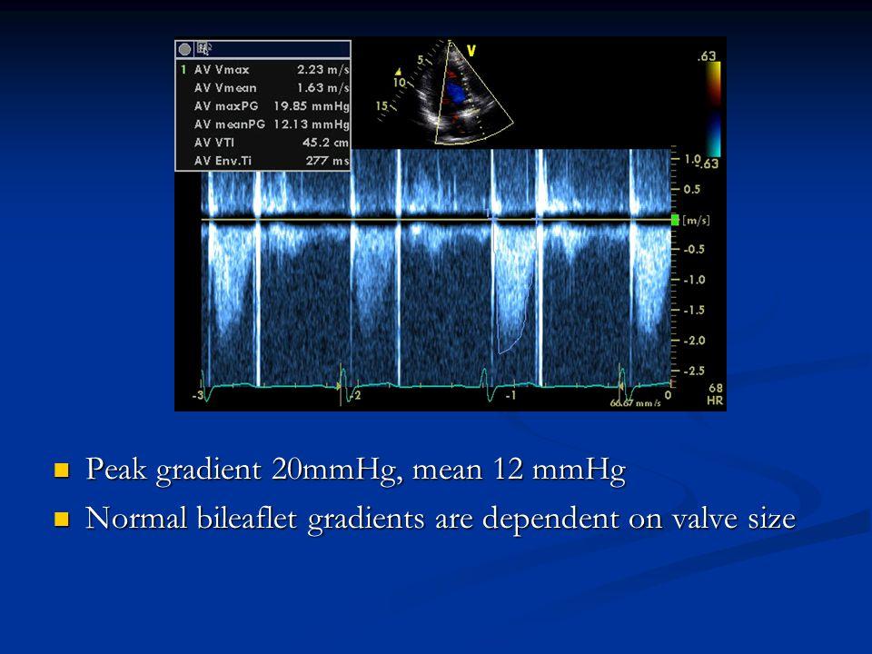 Peak gradient 20mmHg, mean 12 mmHg Peak gradient 20mmHg, mean 12 mmHg Normal bileaflet gradients are dependent on valve size Normal bileaflet gradient