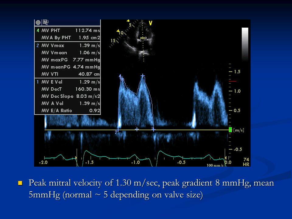 Peak mitral velocity of 1.30 m/sec, peak gradient 8 mmHg, mean 5mmHg (normal ~ 5 depending on valve size) Peak mitral velocity of 1.30 m/sec, peak gra