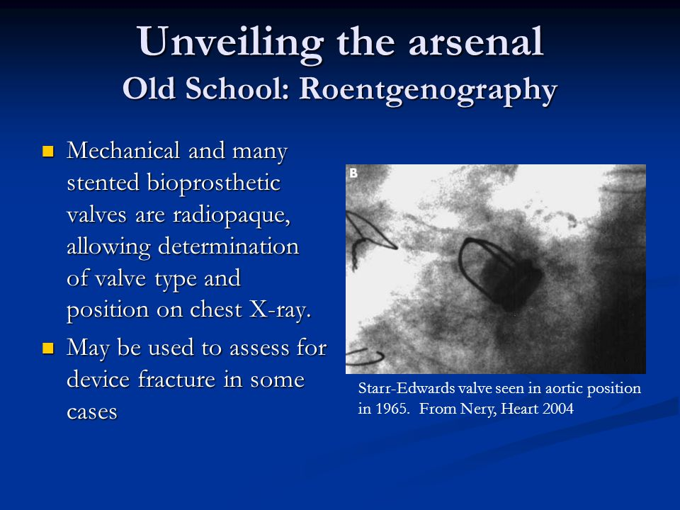 Unveiling the arsenal Old School: Roentgenography Mechanical and many stented bioprosthetic valves are radiopaque, allowing determination of valve typ