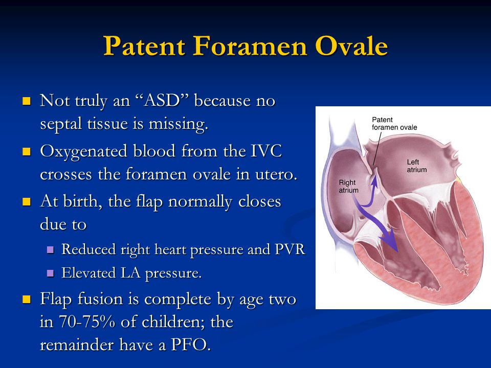 """Patent Foramen Ovale Not truly an """"ASD"""" because no septal tissue is missing. Not truly an """"ASD"""" because no septal tissue is missing. Oxygenated blood"""