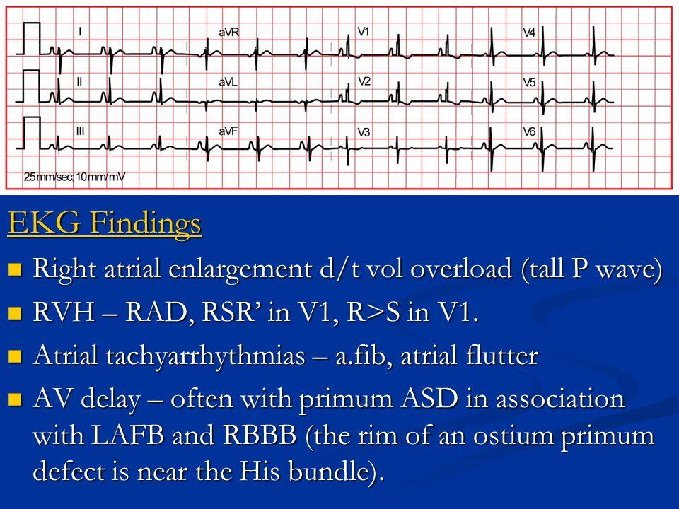 EKG Findings Right atrial enlargement d/t vol overload (tall P wave) Right atrial enlargement d/t vol overload (tall P wave) RVH – RAD, RSR' in V1, R>