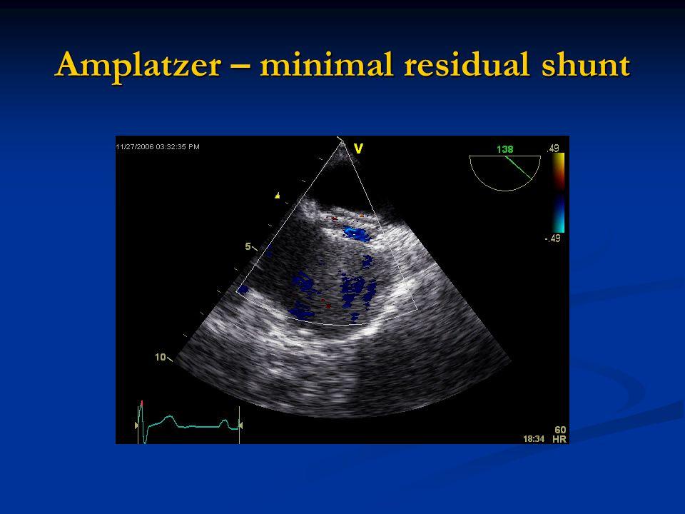 Amplatzer – minimal residual shunt