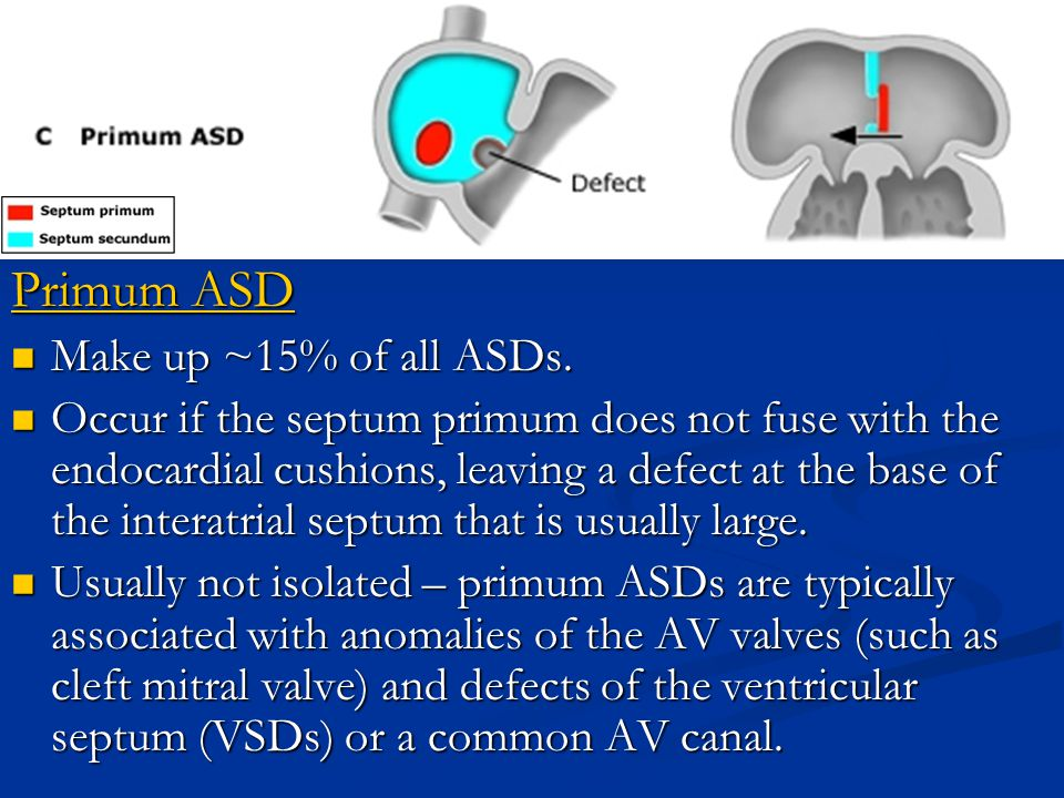 Primum ASD Make up ~15% of all ASDs. Make up ~15% of all ASDs. Occur if the septum primum does not fuse with the endocardial cushions, leaving a defec