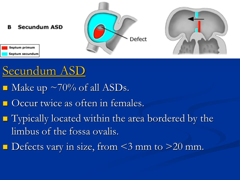 Secundum ASD Make up ~70% of all ASDs. Make up ~70% of all ASDs. Occur twice as often in females. Occur twice as often in females. Typically located w
