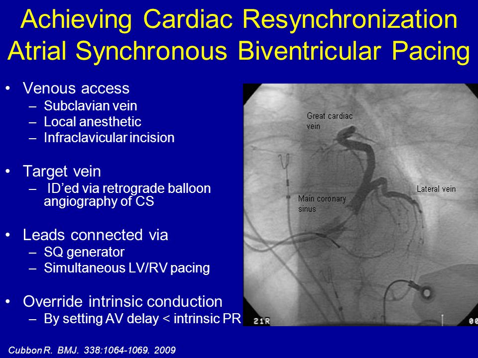 Achieving Cardiac Resynchronization Atrial Synchronous Biventricular Pacing Venous access –Subclavian vein –Local anesthetic –Infraclavicular incision